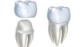 Couronnes - Prisma Dentistes