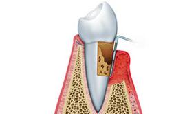 Parodontie - Prisma Dentistes