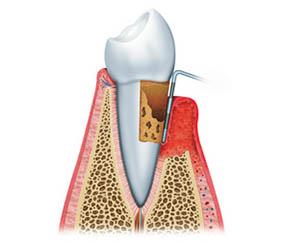 Prisma Dentistes Montreal Parodontie