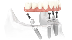 4-in-1 implants denta surgery