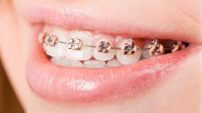 Dental Orthodontics Prisma Montreal
