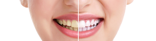 Bleaching - Teeth Whitening-treatments Montreal