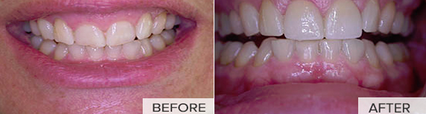 Gum recontouring surgery Montreal