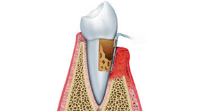 Preventative periodontic surgery Montreal