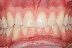prisma dentistes- apres traitement blachiment