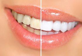 dents avant-après blanchiment dentaire