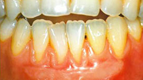 Gingival grafts and Alloderm grafts