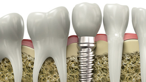 Montreal dental surgery implants